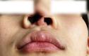 Phẫu thuật thẩm mỹ ở spa, thiếu nữ phải nạo vét mũi biến dạng