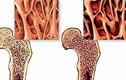 Nhận biết u xương qua các dấu hiệu bất thường