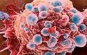 Thống kê kinh hoàng về căn bệnh ung thư