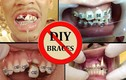 Hậu quả khủng khiếp của niềng răng bằng dây thun tại nhà