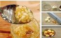 Công thức giấm tỏi mật ong trị bệnh gấp 10 lần kháng sinh