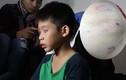 Ảnh: Sẹo chi chít trên người bé 9 tuổi nghi bị bố bạo hành