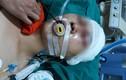 Hà Nội: Nam sinh bị đánh trọng thương ngay cửa nhà