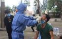 Bệnh nhân tái dương tính với SARS-CoV-2 vừa có kết quả âm tính