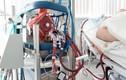 Video: Cảnh đặt ECMO cho bệnh nhân mắc COVID-19 tại Đà Nẵng