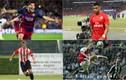 Những điều khoản hợp đồng quái dị của bóng đá thế giới