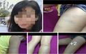 Bắc Ninh: Giáo viên chủ nhiệm đánh học sinh dã man?
