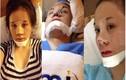"""Khoe ảnh chụp """"cam thường"""", bà Tưng bị """"đào mộ"""" phẫu thuật thẩm mỹ"""