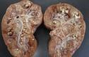 Bác sĩ BV Việt Đức chỉ ra thói quen khiến cơ thể tạo sỏi