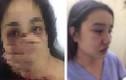 """Bác sĩ đánh nữ thực tập sinh: """"Lộ"""" góc khuất """"đen"""" của ông L.Q.H.P"""