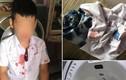 Ông bố đấm bé trai lớp 1 để 'trả thù' thay con: Mẹ nạn nhân lên tiếng