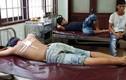 Đắk Lắk: Công an xã bắn đạn cao su, 3 thanh niên nhập viện