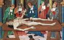 Những hé lộ bất ngờ về chuyện mổ xác người trong lịch sử