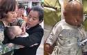 Bị táo rơi trúng đầu, bé gái 3 tháng tuổi chấn thương sọ não vĩnh viễn