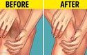 Mẹo hay giúp loại bỏ vết thâm khuỷu tay và đầu gối