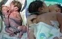 Cặp sinh đôi dính liền nụ hôn khiến các bác sỹ bó tay