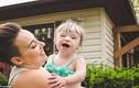 Tâm sự của bà mẹ sinh và nuôi con mắc bệnh Down