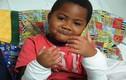 Bệnh nhân nhỏ tuổi nhất được cấy ghép tay ở Mỹ