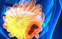 Cẩn trọng 4 dấu hiệu ung thư vú bạn chưa từng nghe