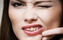 Mẹo nặn mụn để da mặt láng cóng không thâm sẹo
