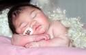 Thương tâm bé thoát vị não không thể khóc và mở mắt