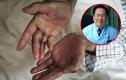 Giáo sư bị ung thư 14 năm vẫn khỏe chia sẻ kinh nghiệm quý