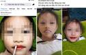 Thẩm mỹ viện ở Thanh Hoá phun môi cho bé gái 5 tuổi