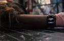 Kích hoạt ngay tính năng này của Apple Watch để chống đột quỵ