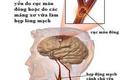 Mỡ trong máu cao có thể gây chết người