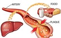 Tại sao rối loạn lipid máu nguy hiểm?