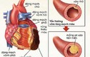 Rối loạn mỡ máu và nguy cơ các bệnh tim mạch