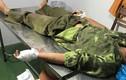 Kiểm lâm bị băng nhóm lâm tặc chém đứt gân tay để giải cứu đồng đội