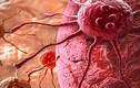 Phát hiện 2 protein ở da người tự hủy tế bào ung thư