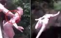 Video: Bạn bè nghịch dại, thiếu nữ 16 tuổi ngã gãy xương sườn, tổn thương phổi
