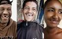 Video: Nhổ một loạt răng cửa để trở thành 'bậc thầy' khi hôn
