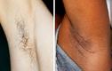 Tại sao ngày càng nhiều phụ nữ ngừng việc cạo lông trên cơ thể?