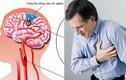 Bạn nên biết 7 dấu hiệu sớm của đột quỵ