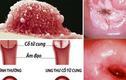 Yêu từ năm 16 tuổi khiến cô gái mắc ung thư cổ tử cung