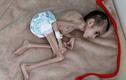 Xót xa hình ảnh cậu bé 7 tuổi bị liệt nặng vỏn vẹn 7kg