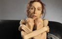 Căn bệnh chán ăn tâm thần gây nhiều biến chứng nguy hiểm