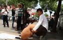 Bị chứng chân voi nặng 150 kg chỉ vì bị... muỗi đốt