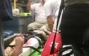 TP HCM: Rơi thang máy tự chế, 5 cụ già trọng thương