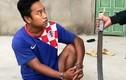 Nóng: Thêm nghi can nhóm chém thuê bác sĩ Chiêm Quốc Thái sa lưới