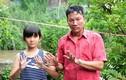 Kỳ lạ, cả gia đình ở An Giang có 24 ngón tay, chân