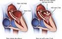 Bệnh hở van tim của Tuấn Hưng nguy hiểm ra sao?
