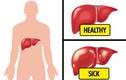 Chứng đầy hơi có thể là dấu hiệu 6 căn bệnh nguy hiểm cần cảnh giác
