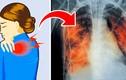 5 dấu hiệu báo động phổi bạn đang có vấn đề