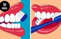 8 lỗi chăm sóc răng miệng đang hủy hoại răng bạn từng ngày