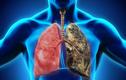 Bệnh ung thư phổi khiến nhạc sĩ Vũ Đức Sao Biển qua đời phòng ngừa cách nào?