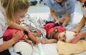 Nghẹt thở những ca phẫu thuật tách rời song sinh dính liền trên thế giới